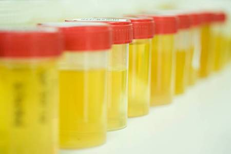 Моча на анализ на белок при беременности