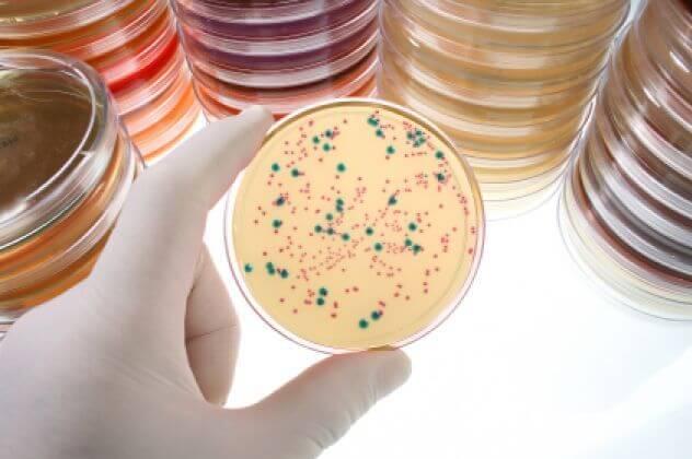 Посев мочи на бактерии
