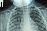 рентген перелома ключицы