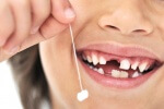 выпавший молочный зуб