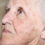 Возрастные пятна на коже
